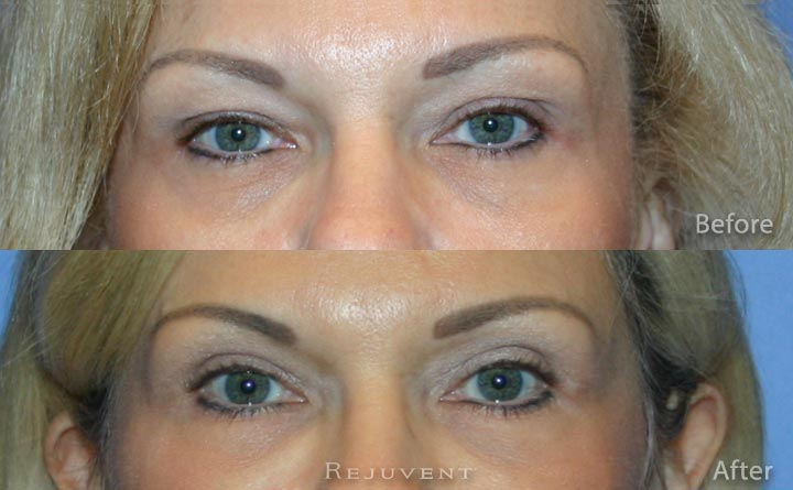 Upper eyelid surgery Blepharoplasty