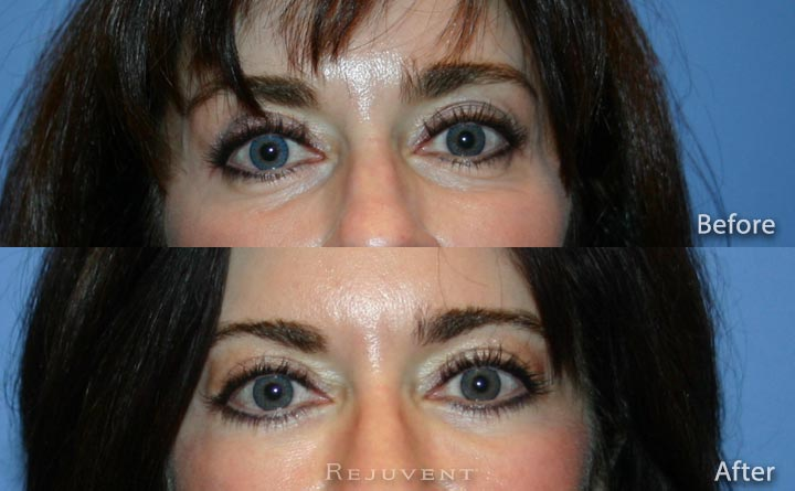Lower Bleph Eyelid Surgery Frontal view