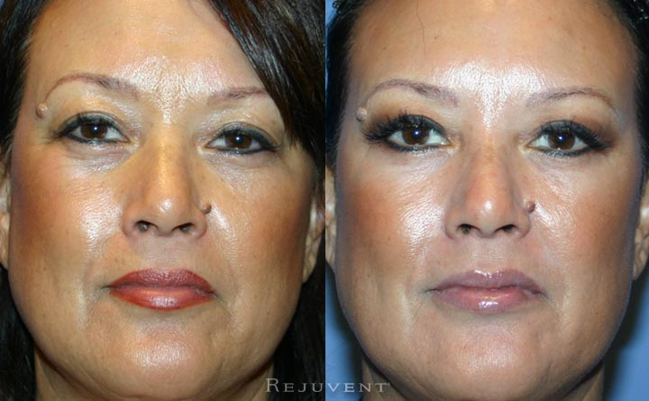 Upper Bleph Before and After Patient Rejuvent Scottsdale