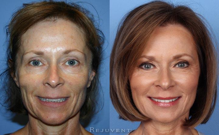 Long Term Rejuvenation Patient Rejuvent Scottsdale
