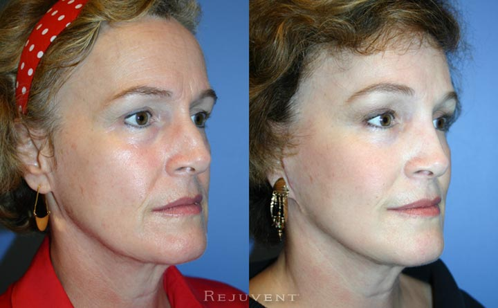 Rhinoplasty and facelift at Rejuvent Scottsdale