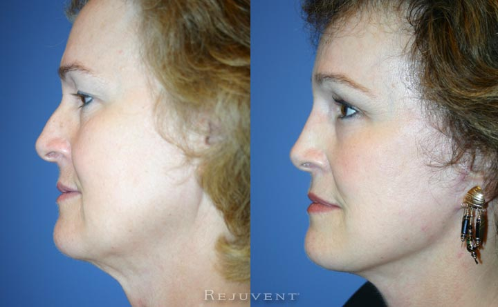 Nose surgery and facelift at Rejuvent Scottsdale side view 2