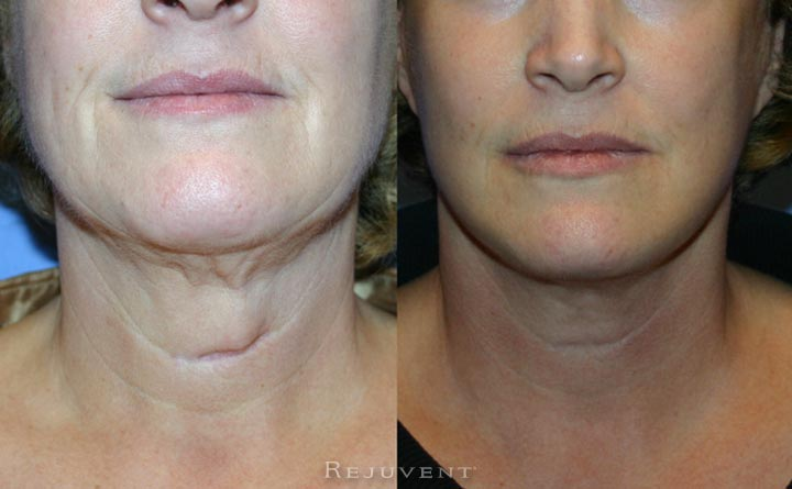 Scar Revision Patient Before and After At Rejuvent Scottsdale