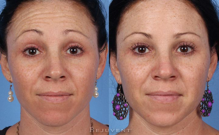 Botox on forehead before and after photo