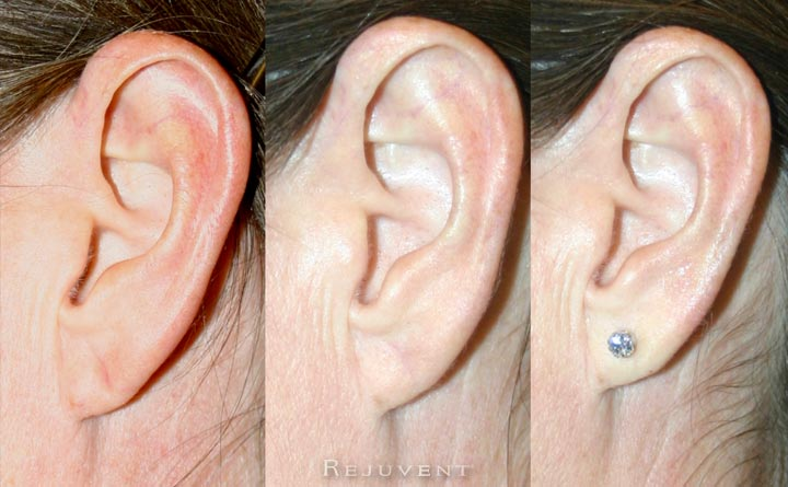 stretched earlobe repair surgery