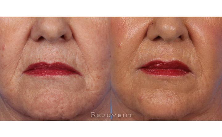 Liquid facelift and downturn mouth Botox