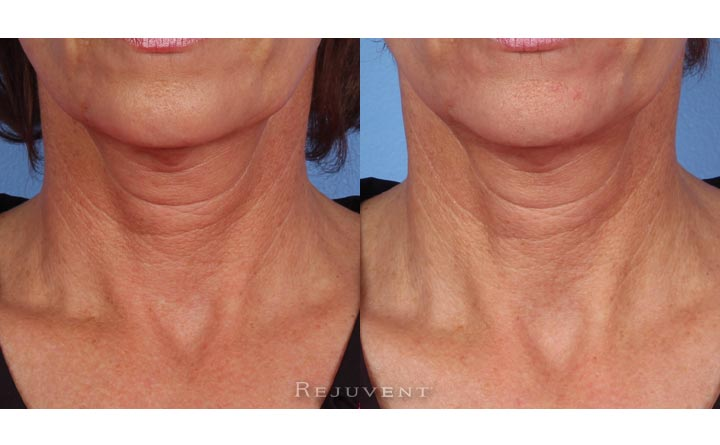 Neck skin firming with Nectifirm