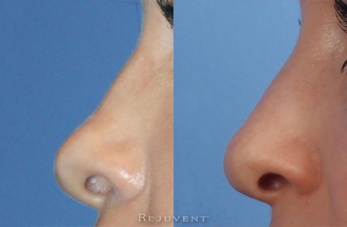 Non-Surgery Nasal Sculpting