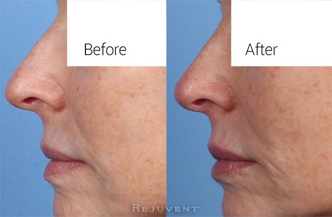 Non Surgical Nasal Sculpting
