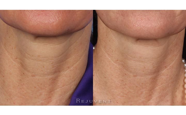 Softer Neck lines with Nectifirm