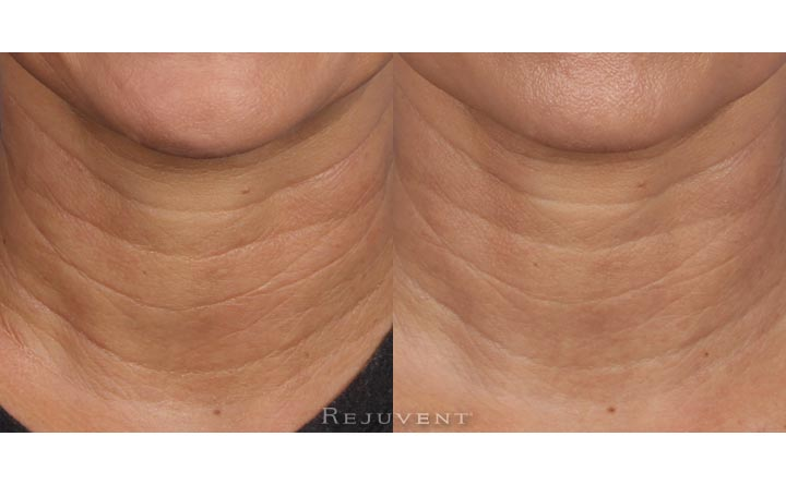 Skin firming and wrinkle softening with Nectifirm