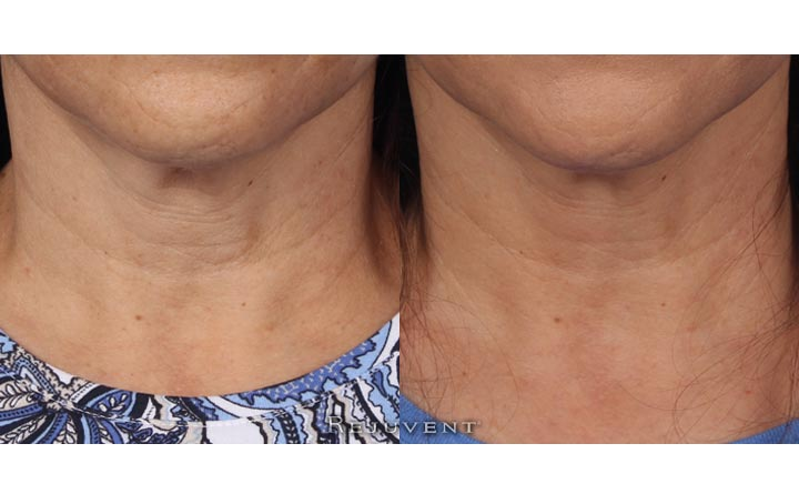 Neck firming - Patient used Nectifirm