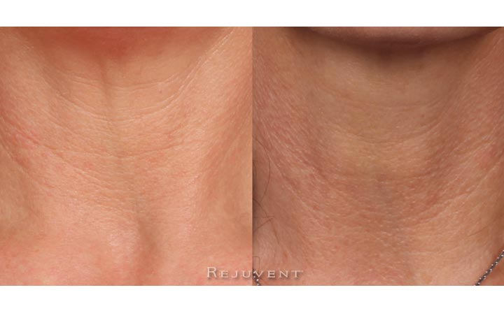 Neck Firming Photo 3 weeks use