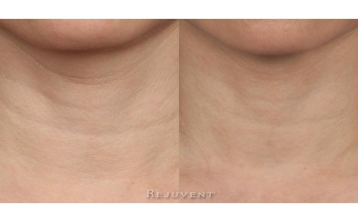 Neck firming Skincare