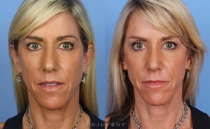 Rhinoplasty Scottsdale Female patient frontal