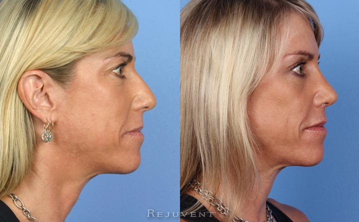 Rhinoplasty Scottsdale patient side view