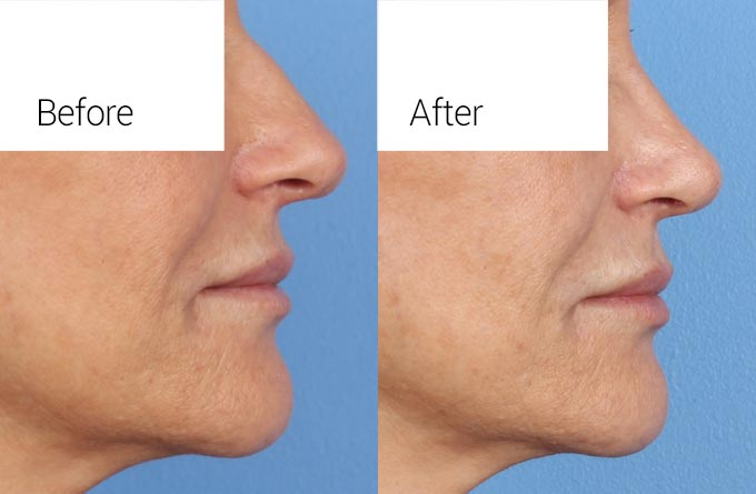 Nose Surgery Rhinoplasty Closeup