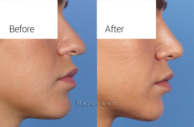 Nose Syrgery Rhinoplasty Closeup