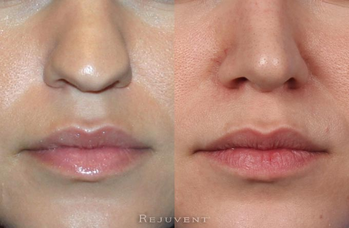 Nose surgery Rhinoplasty Close Ups