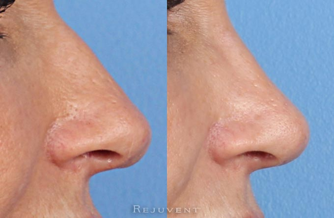 Nose Surgery Rhinoplasty Close up