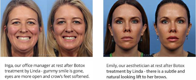 Botox with Linda savings