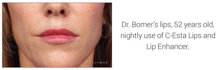 Dr Bomer's Lips