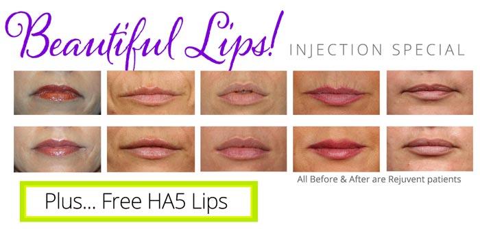 Free HA5 Lips with Lip Volumizing