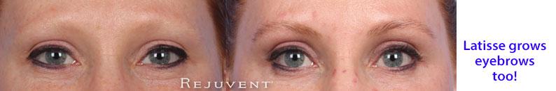 Latisse on eyebrows