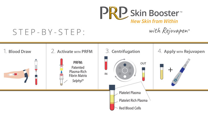 Step-by-step PRP Skin Booster with Rejuvapen