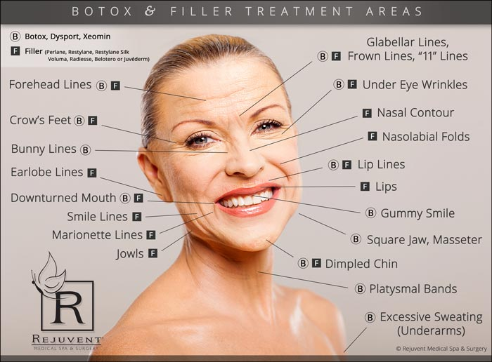 Botox areas marked with B Filler areas marked with F