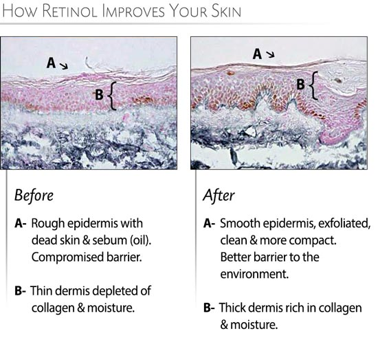 Dermis after Retinol use