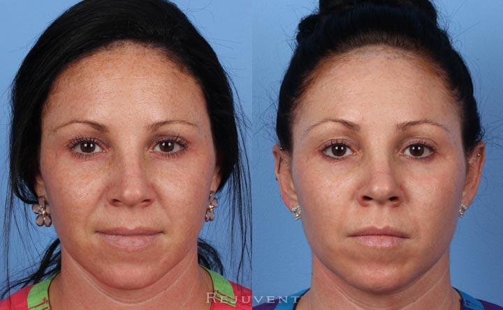 Fotofacial Great Results