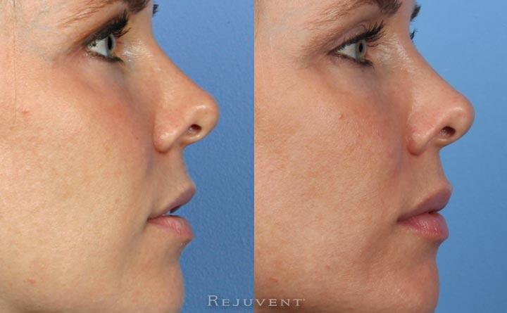 Lip Enhancement profile view