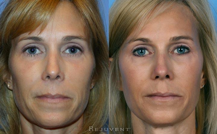Liquid Facelift with Lip Enhancement