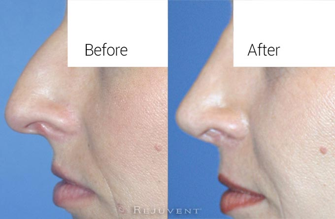 Nose surgery at Rejuvent