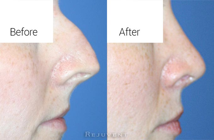Rhinoplasty Close up of Hook Nose