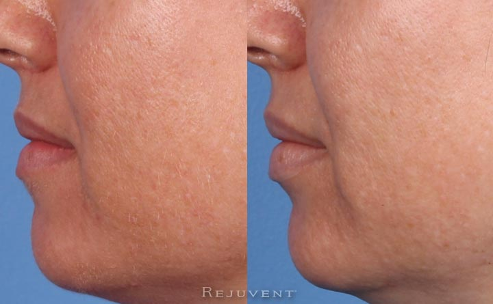 Dermaplaning and Rejuvapen before and after