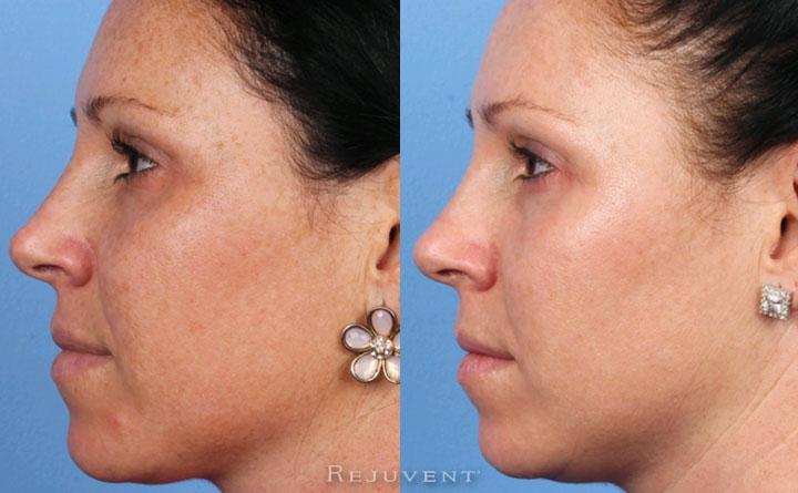 Less freckles after Fotofacial