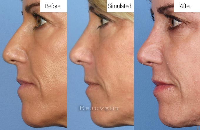 Simulated View Before and After Rhinoplasty