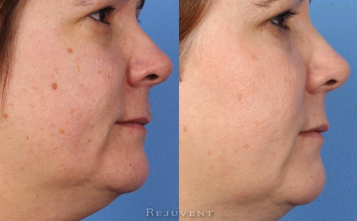 Fotofacial and aesthetic skin treatment results