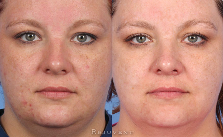 Amazing chemical peel results