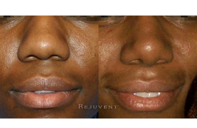 Rhinoplasty with tip refinement