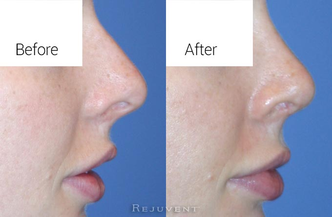 Closeup image of Before and after Rhinoplasty