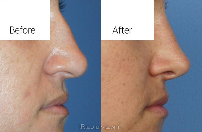 Rhinoplasty to remove nose hump with tip rotation