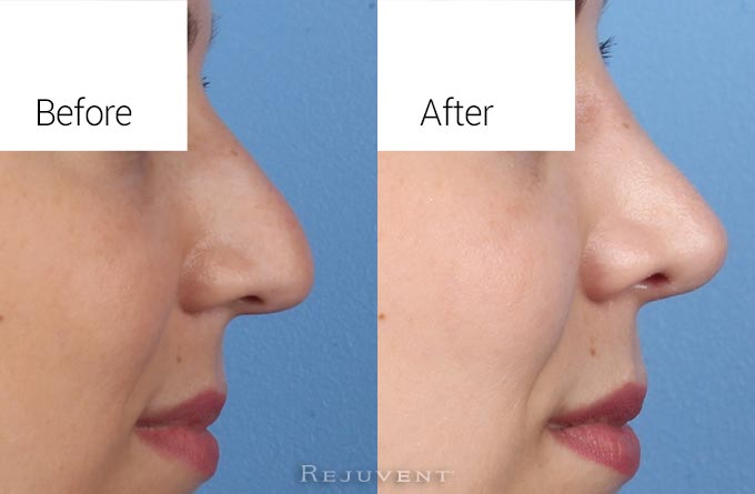 Hump and tip rotation rhinoplasty