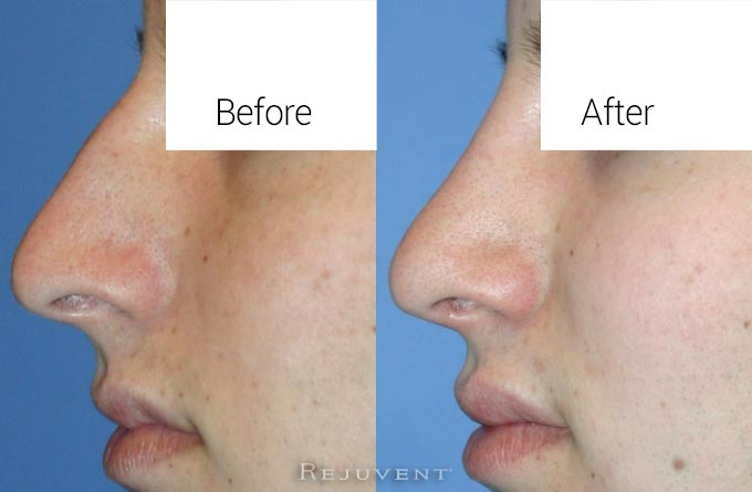 Male patient - hump reduction rhinoplasty