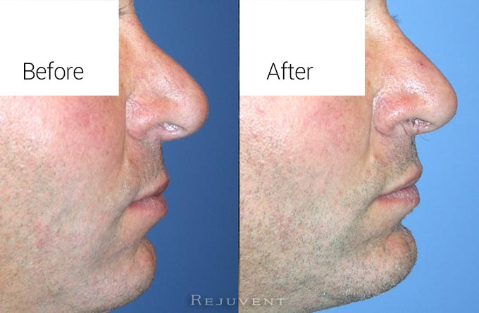 Nose surgery male patient