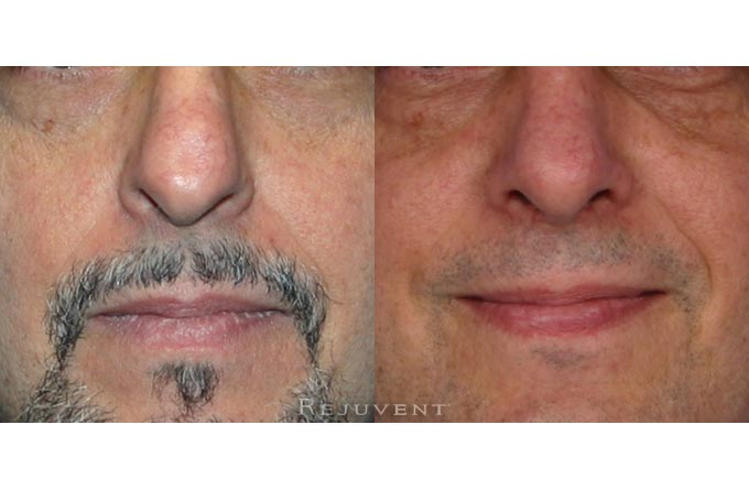 Nose tip refining with Rhinoplasty