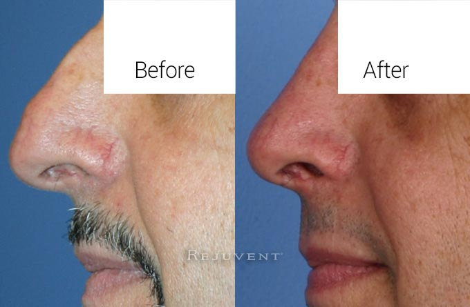 Male Patient After Rhinoplasty Hump Removal