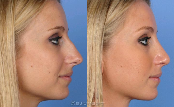 Side view of female patient after Rhinoplasty to remove hump